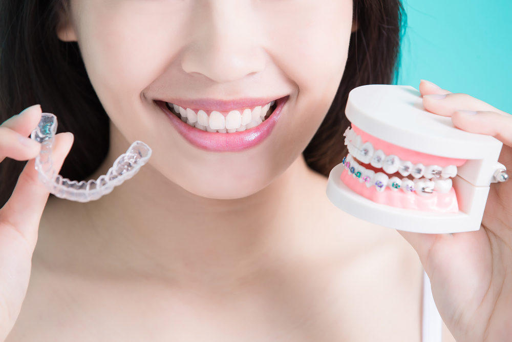 woman with invisalign and braces