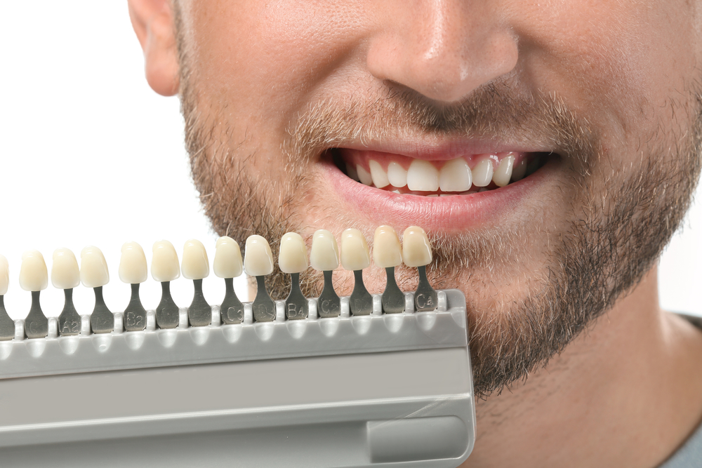 man with discolored teeth
